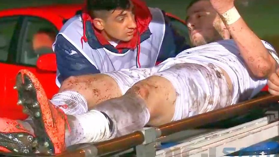 Permalink to Durerea face parte din fotbal